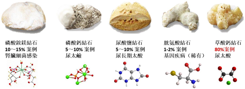 腎結石種類
