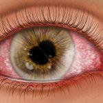 結膜炎 vs 虹膜炎 vs 虹彩炎 vs 葡萄膜炎
